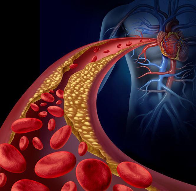 than hoạt tính làm giảm các Cholesterol xấu và tăng các Cholesterol tốt